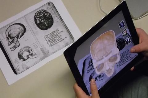 An augmented human skull